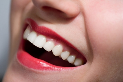 woman-with-white-teeth-and-red-lipstick